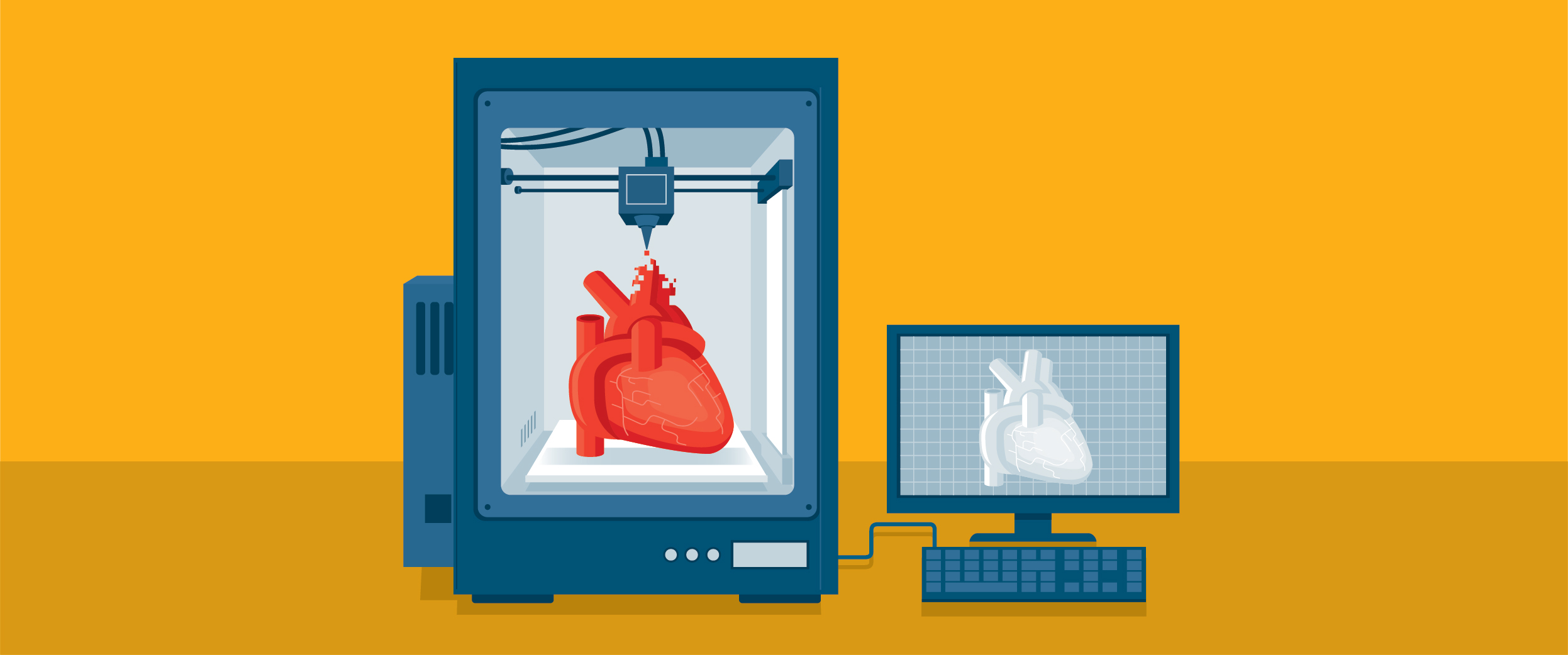 3D printing a heart for organ transplant