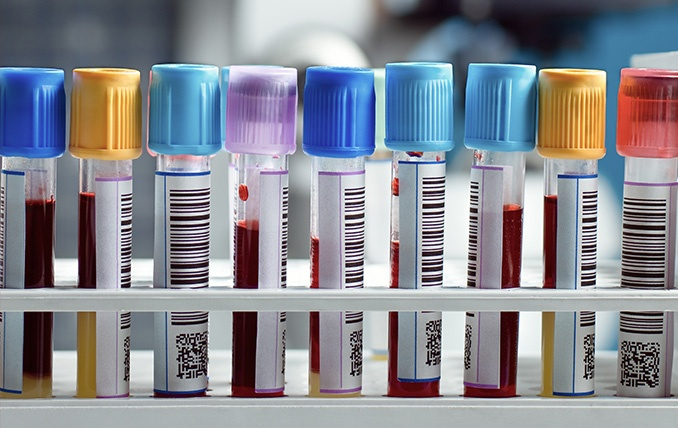 Barcode labeled vacutainer tubes - Errors in the Clinic